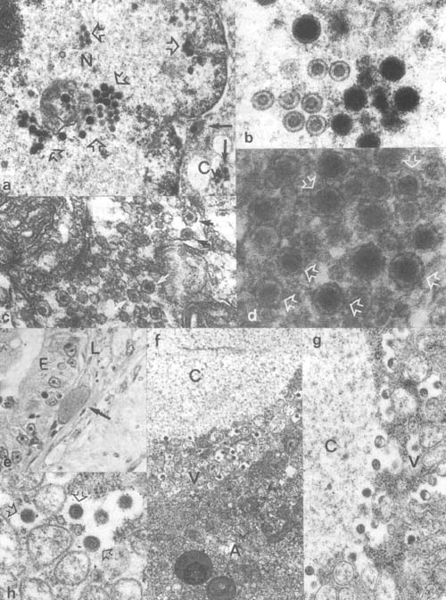 Plate 1. Viral infections: a,b. Transmission electron microscopic (TEM) view of Herpes-like infection in gold fish, naked (80–100 nm in size) and coated viral particles (106–153 nm) formed in the nucleus (N) and spread into the cytoplasm (Cy). c,d. Viral particles (size about 100 nm) recovered from tilapia fry affected by whirling disease (by TEM). e. Hypertrophic virus infected endothelial cell in the lamina propria of gourami (Trichogaster trichopterus) gut (Histology by light microscopy [LM]). f–h. TEM view of virus infected endothelial cell from the gourami; the corona-like particles are 111–141 nm in size. A. host-cell peripheral cytoplasmic layer; C, debris filled interior space of the cell; V, virus forming layer.