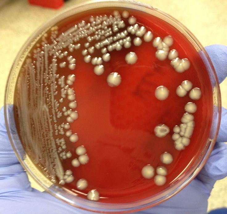 Mengenal Bakteri : KlebsiellaPneumonia